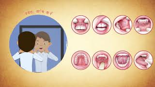Is oral cancer preventable?