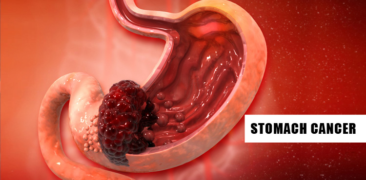 Stomach/Gastric Cancer: Symptoms and Risk factors