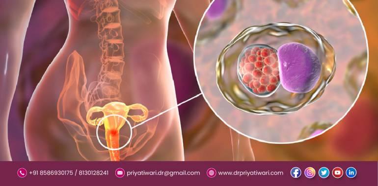 uterine cancer specialist in Delhi